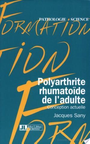 Affiche Polyarthrite rhumatoïde de l'adulte